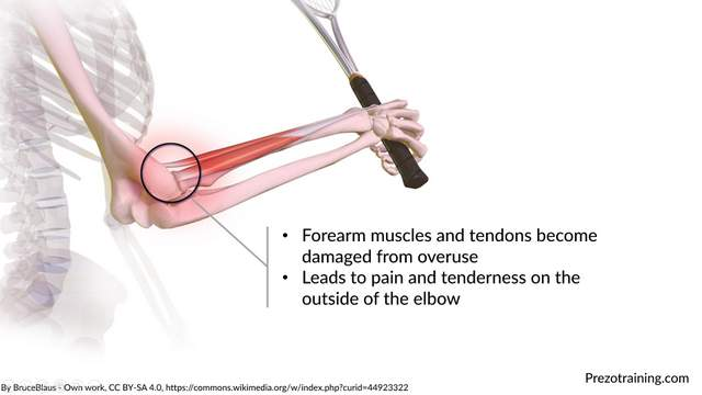 Tennis Elbow Example For Technical Presentations 2