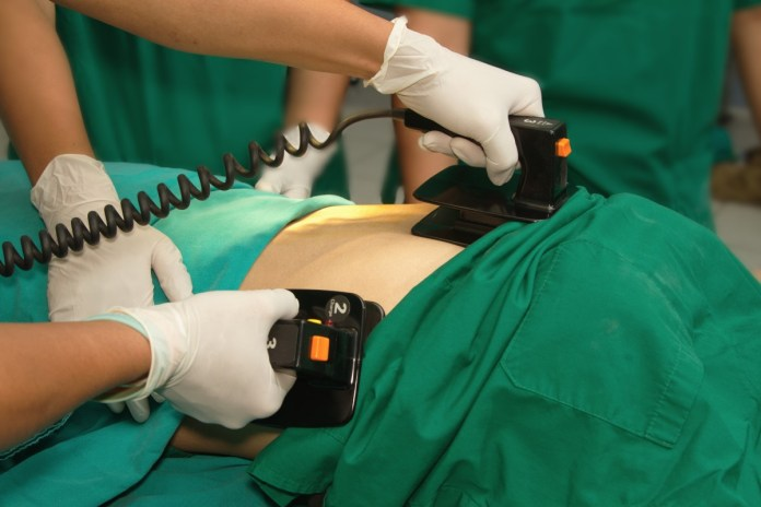 photograph of defibrillator practice on a CPR dummy