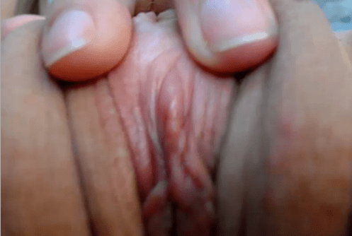up close clit