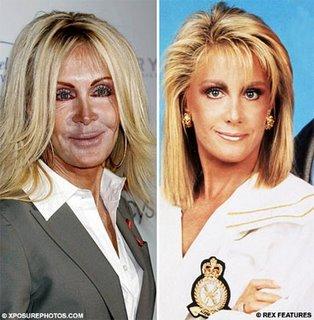 Joan Van Ark Surgery