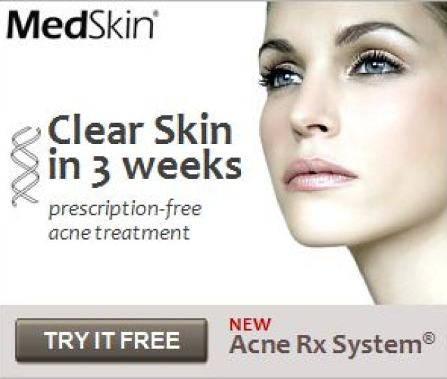 Amazing New Adult Acne Treatment Shows Over  Success Rate