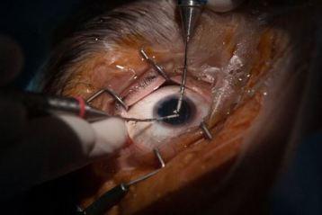 Glaucomul, boala care afectează cel mai des regiunea noastră