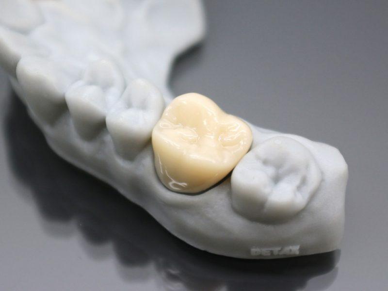 prótese dentária em resina e impressão 3D detax