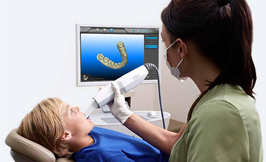 impressão 3D no setor odontológico scanner 3D