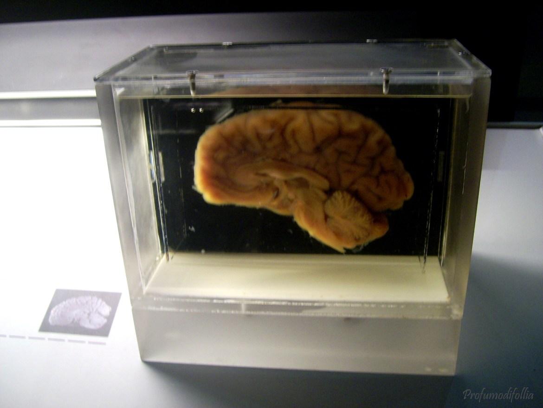 cervello umano cosmocaixa