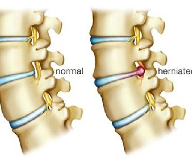 Physical Therapy For Herniated Disc