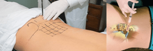 Proloterapi_Nedir-1-300x100