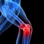 Dizde Kireçlenme (osteoartirit)