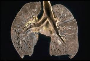 Blog fibrosis quistica