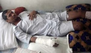Ahmed Rashad Mushfiq lost both of his legs to a roadside bomb explosion. (Photo courtesy of Pratap Chatterjee.)