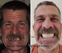 Florida man uses identity theft to obtain $41,000 of dental implants