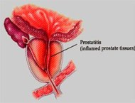 Inflamed prostate due to acute bacterial prostatitis