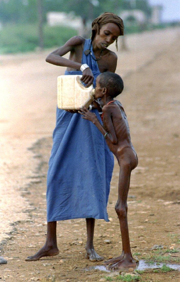 Μια γουλιά νερό για το σκελετωμένο παιδί στη Σομαλία το 1992