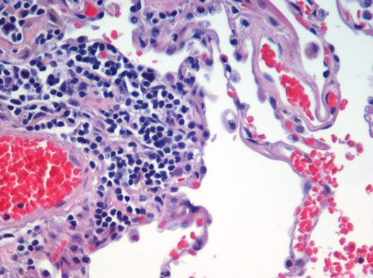 Lung tissue stained with the H&E technique. Nuclei are darkly stained in this image.