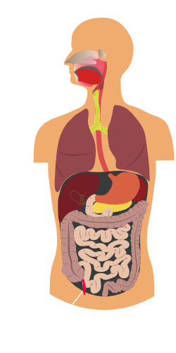 Information about pseudomyxoma peritonei (PMP)