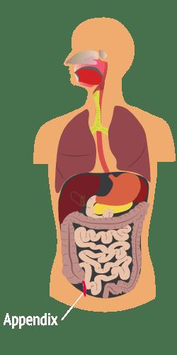 pseudomyxoma-survivor-appendix