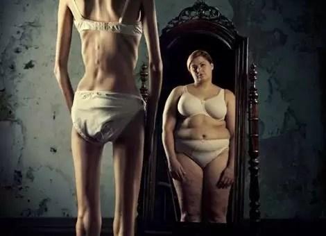 Öldüren Sendromlar 1 : Anoreksiya Nervoz
