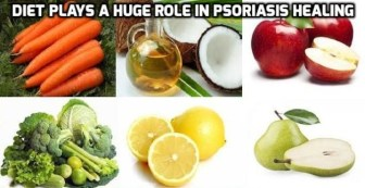 Image result for Eat a Psoriasis Diet