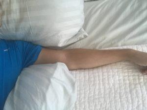 sore shoulder and after shoulder surgery