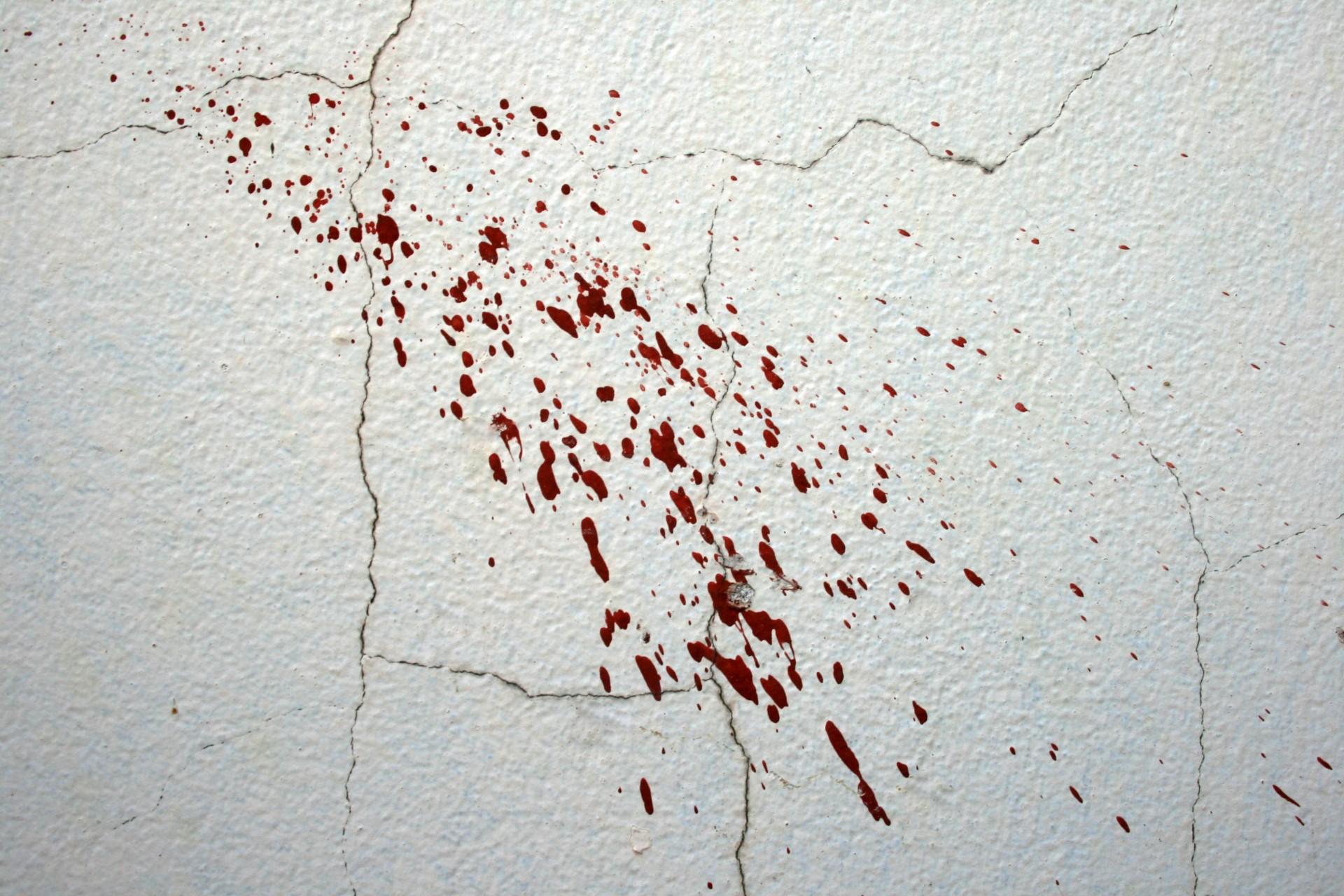 Image result for blood splatter