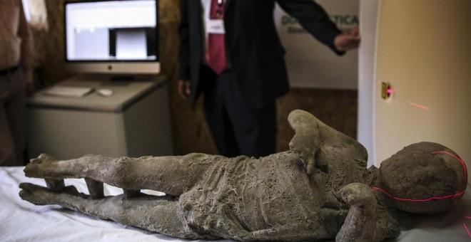 Una momia de Pompeya es examinada mediante una tommografía axial computarizada, en un proyecto que investiga los hábitos, el empleo y las clases sociales de las víctimas de la erupción del Vesubio en el año 79 d.C. EFE/Cesare Abbate