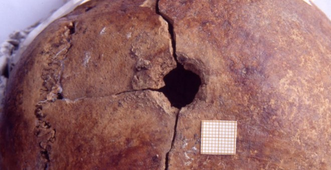 Orificio de disparo en la cabeza en la fosa común de la fosa de Priaranza del Bierzo cedidas por la ARMH