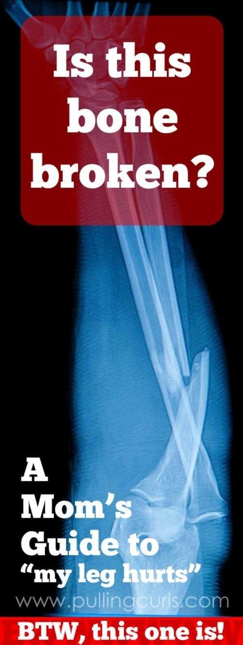 broken bones symptoms   is it broken   moms guide   how to tell