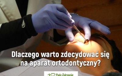 Dlaczego warto zdecydować się na aparat ortodontyczny?