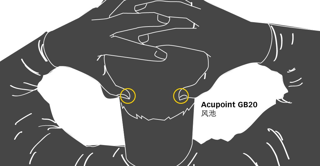 GD20 Acupressure point for Migraine