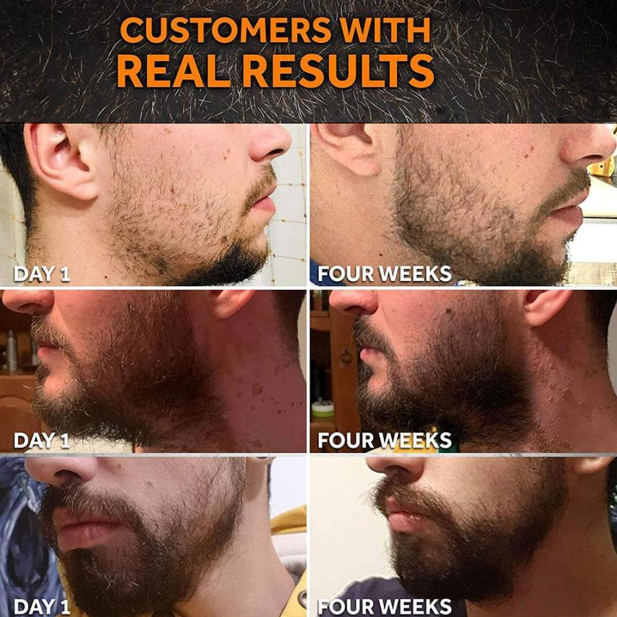 Beard Growth Enhancer Kit With Nourishing Conditioner Oil 3
