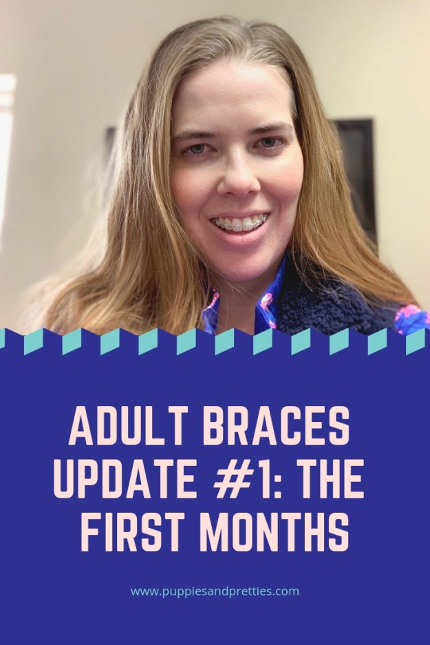 Adult braces update #1: The first months. Read about my first appointment to get ceramic braces on, living with braces and the second set of ceramic braces.   Puppies & Pretties