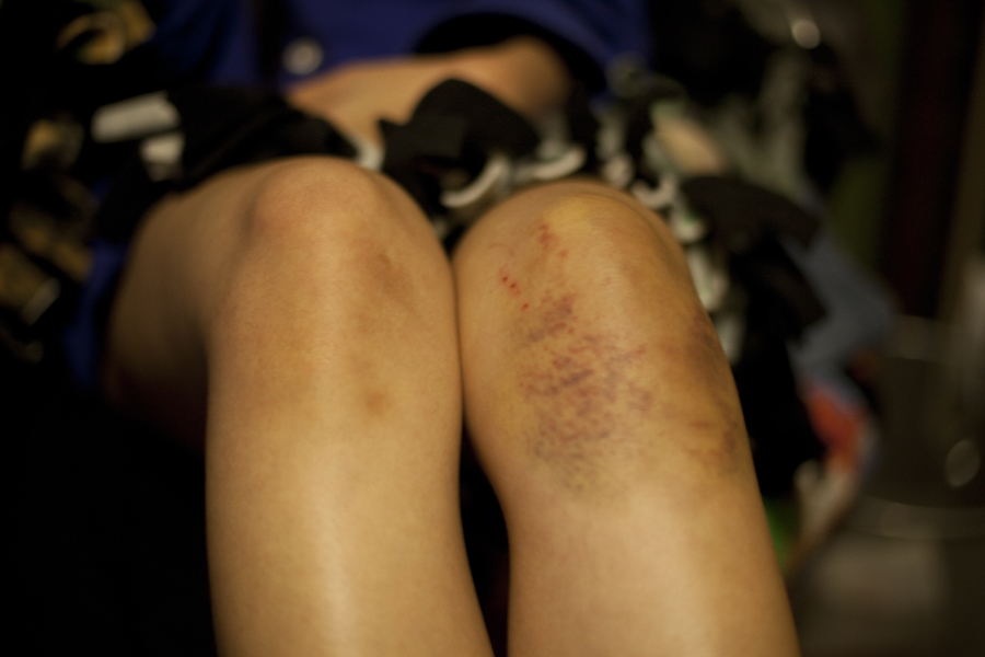 Epic bruise on my left knee.