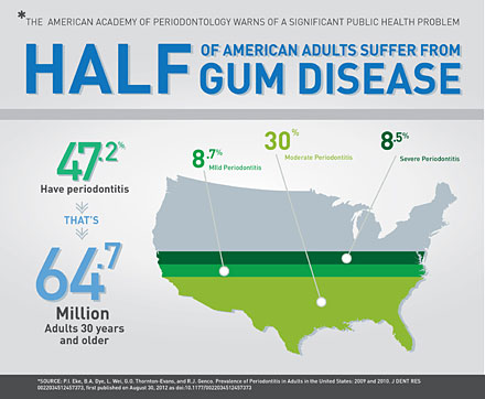 Half of American Adults have Gum Disease