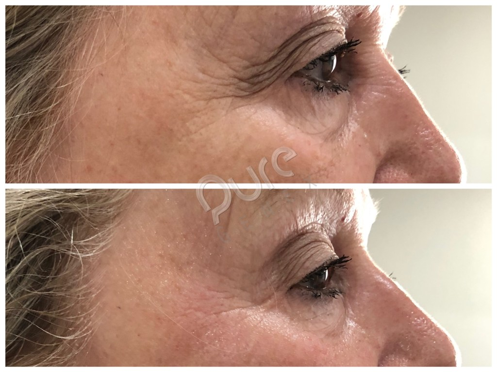 Amazing Skin Tightening Results With 4D-Sculpt 8