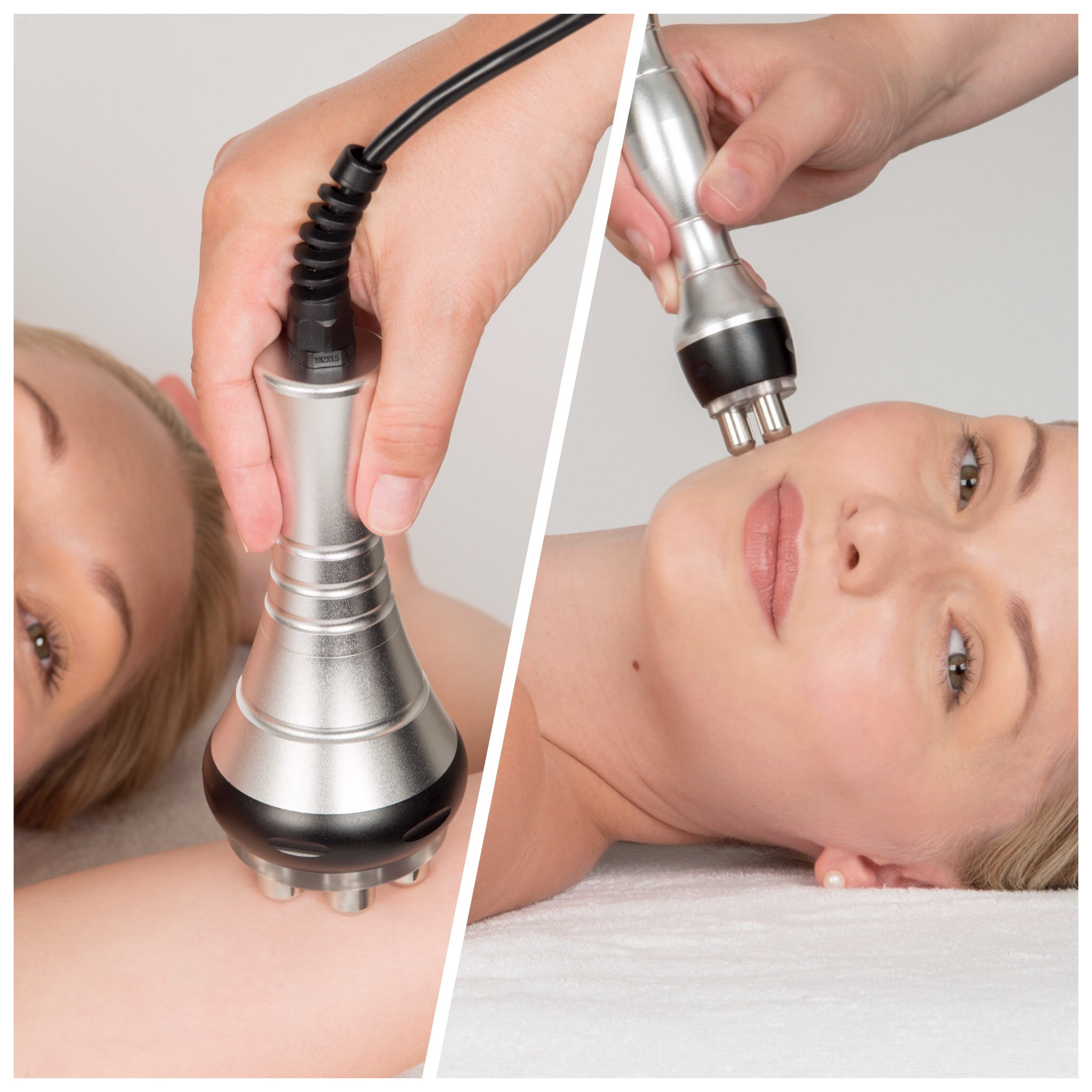 Radio Frequency (RF) Skin Tightening – Induces Tissue Remodelling & Production Of New Collagen & Elastin! 2