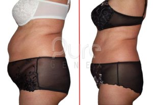 PureGenex-PureGenesis-Accelerated-Laser-Inch-Loss-Results