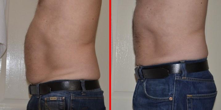 male-abdomen-side-left-combined