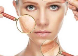 Argan olie bij huidirritatie, zoals psoriasis, eczeem, acne