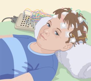 EEG cartoon