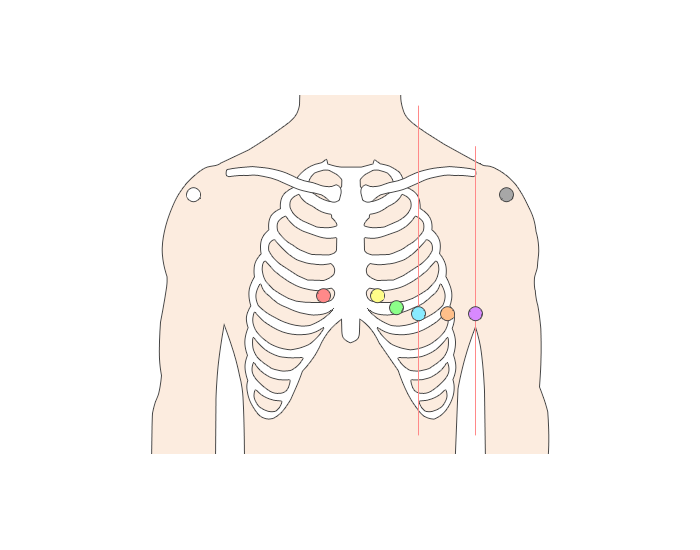 Lead 12 Ecg Placement Printable