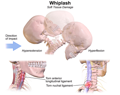 Whiplash injuries Diagram.png
