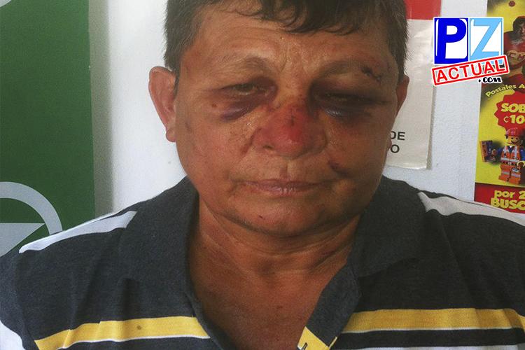 OIJ detiene a sujetos que propinaron golpiza a regidor municipal de Pérez Zeledón