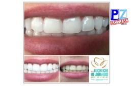 Conozca 10 consejos prácticos para un buen Blanqueamiento Dental.