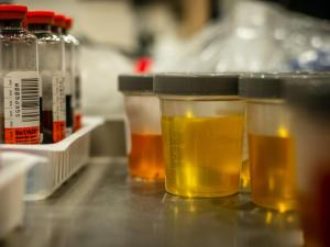 urine infection RM culture test