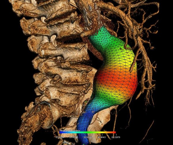 Esta imagen presenta una reconstrucción tridimensional de un aneurisma de aorta abdominal con una representación del color de su diámetro.