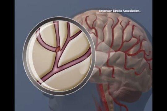 Un coágulo de sangre en el cerebro. Fuente: American Heart Association