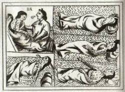 Smallpox Among the Aztec