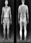 Body_Scan_Pic
