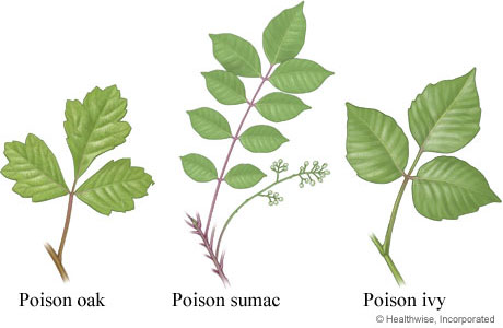 Getting Rid of Poison Ivy
