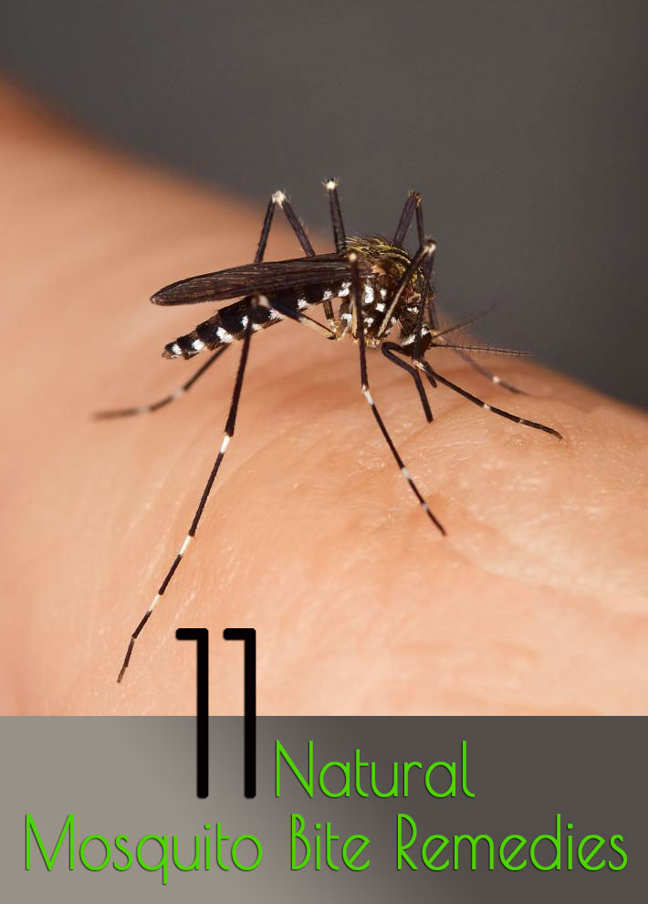 11 Natural Mosquito Bite Remedies